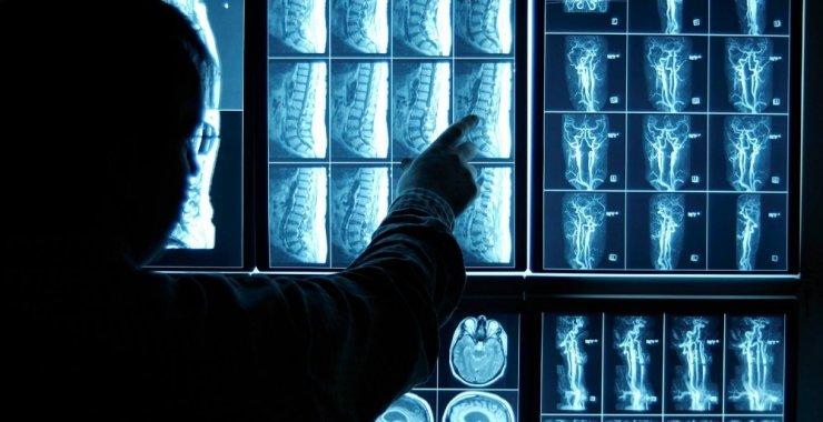 La DOSPU convoca a profesionales en radiología